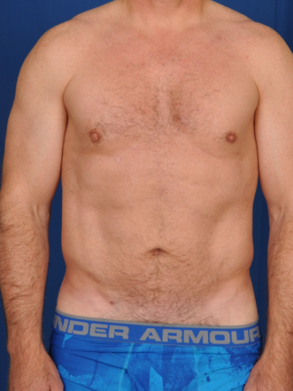 VASER Hi Def Liposuction Before & After Patient #6452