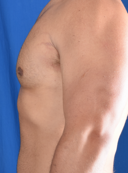 Gynecomastia Before & After Patient #6461