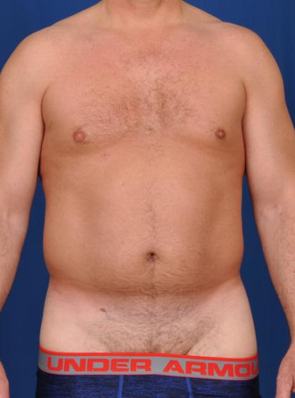 VASER Hi Def Liposuction Before & After Patient #6452