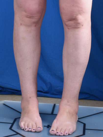 Legs Liposuction Before & After Patient #6551