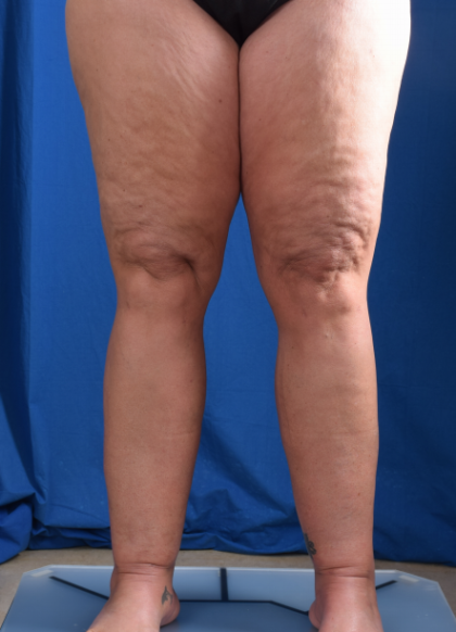 Legs Liposuction Before & After Patient #6544