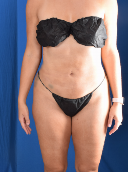 VASER Hi Def Liposuction Before & After Patient #6543
