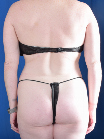 Standard Liposuction Before & After Patient #6582