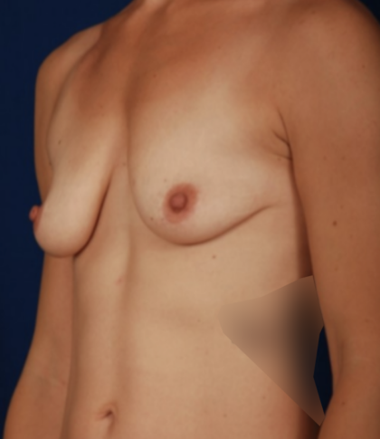 Breast Augmentation Before & After Patient #6750