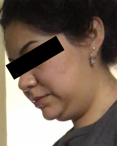 Chin Liposuction Before & After Patient #6755