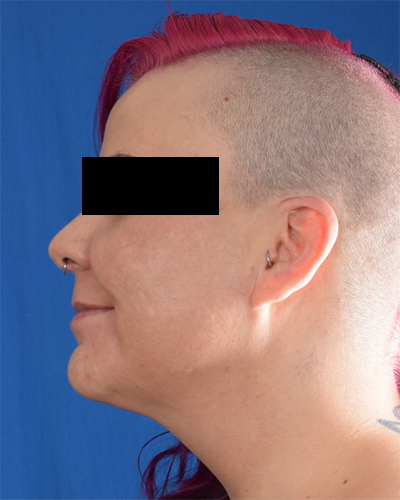 Chin Liposuction Before & After Patient #6758