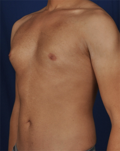 Gynecomastia Before & After Patient #6765