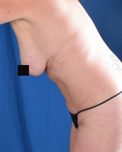 Tummy Tuck Before & After Patient #6778