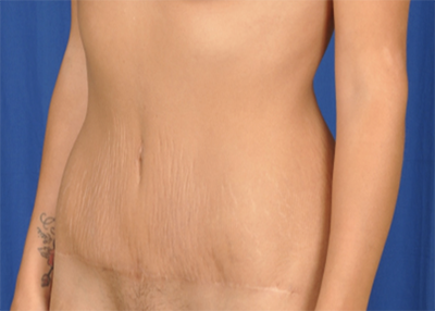 Tummy Tuck Before & After Patient #6781