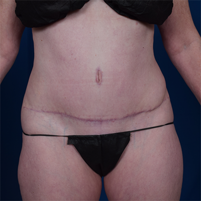 Tummy Tuck Before & After Patient #6786