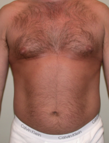 VASER Hi Def Liposuction Before & After Patient #6793