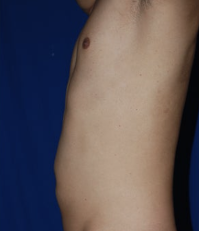 VASER Hi Def Liposuction Before & After Patient #6796