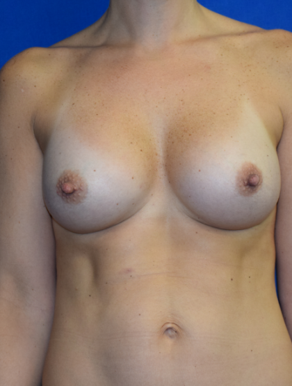 Breast Augmentation Before & After Patient #6893