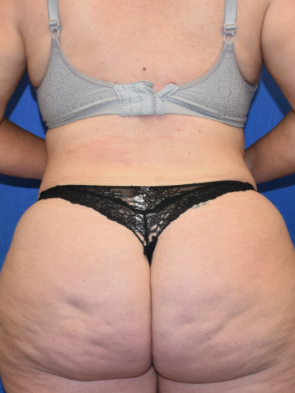 Standard Liposuction Before & After Patient #6905